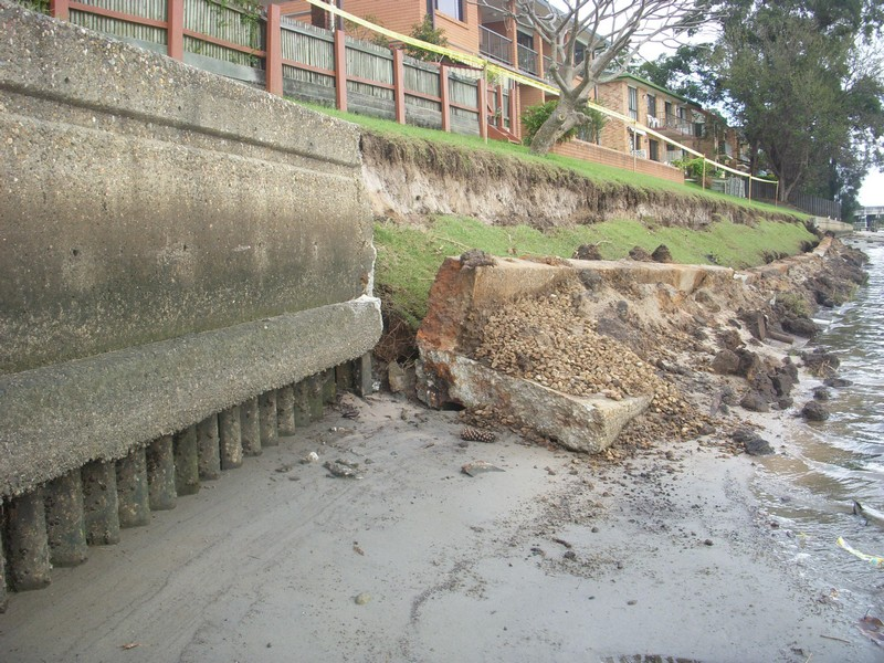 Failed canal wall