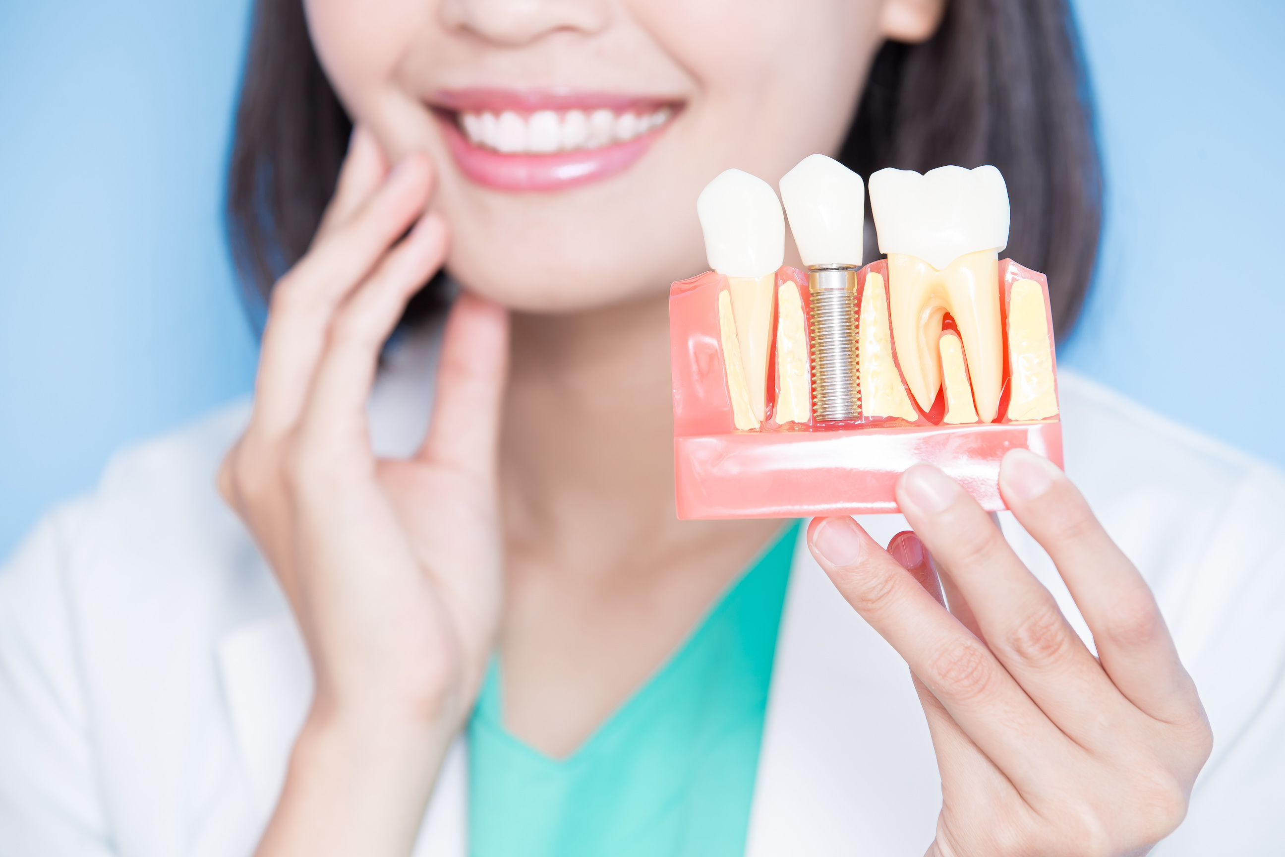 The Top 5 Benefits of Dental Implants for Your Oral Health