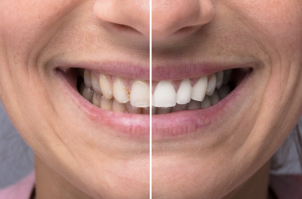 teeth comparison whitening