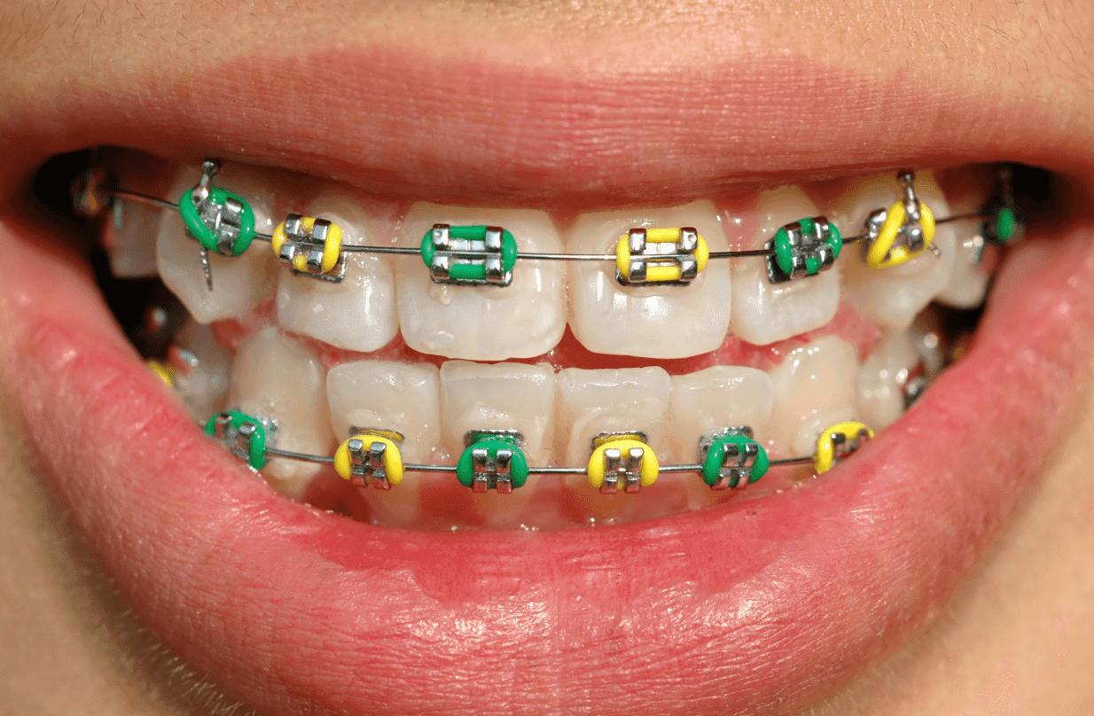 Teens braces