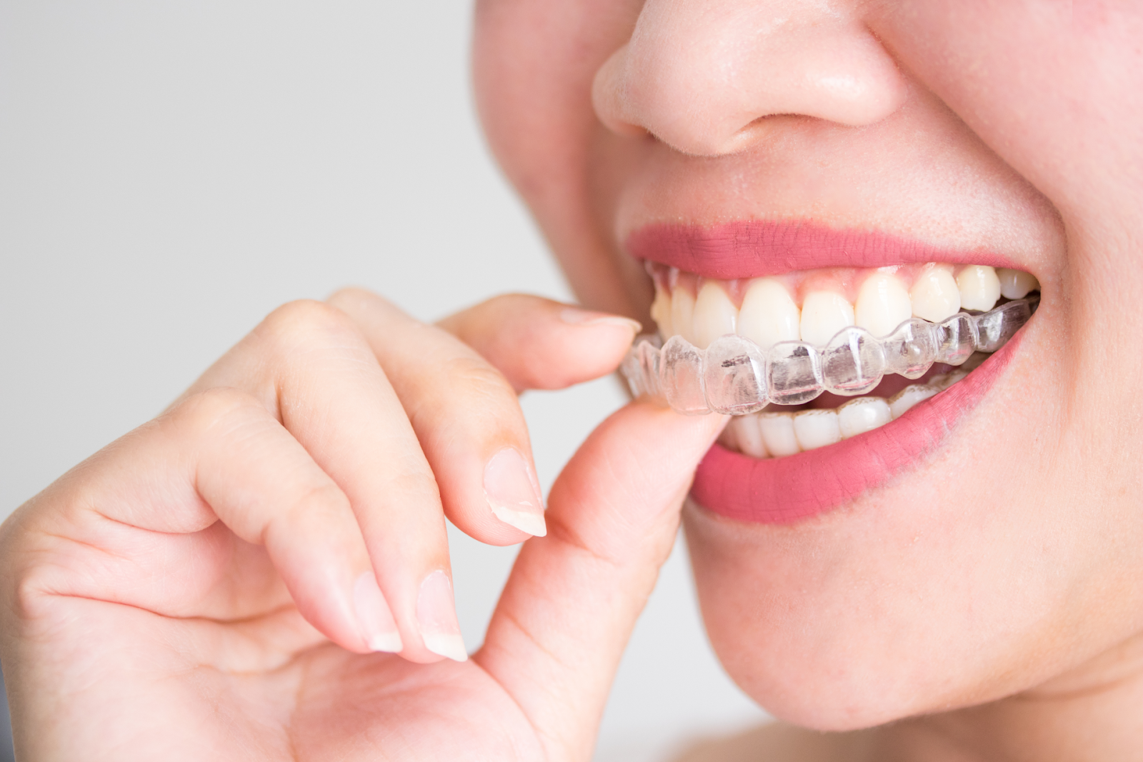 woman placing invisalign tray inside mouth