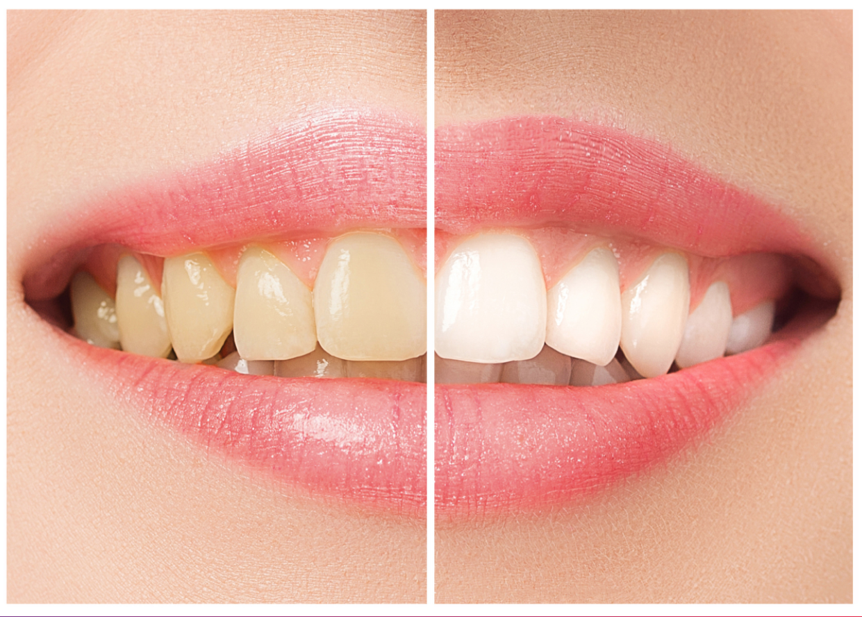 Before and after photo of a teeth whitening treatment