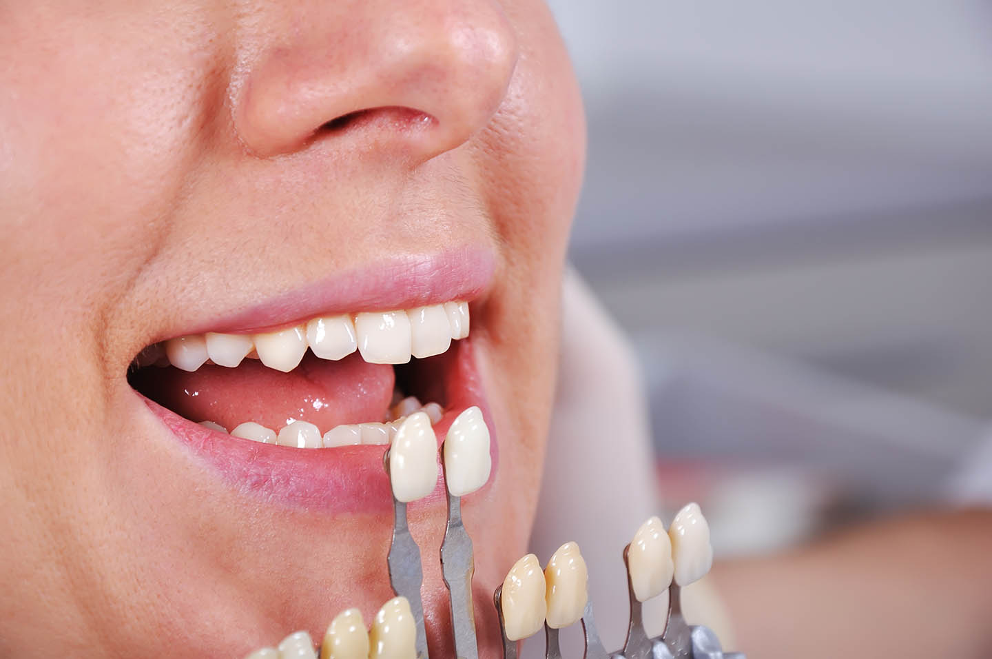 closeup of patient getting fitted for veneers