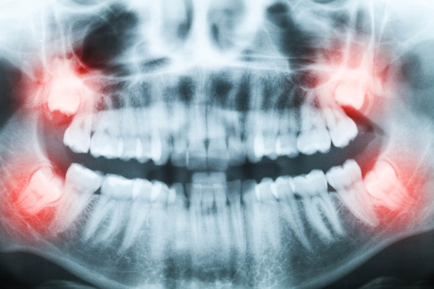 xray of mouth with teeth pain