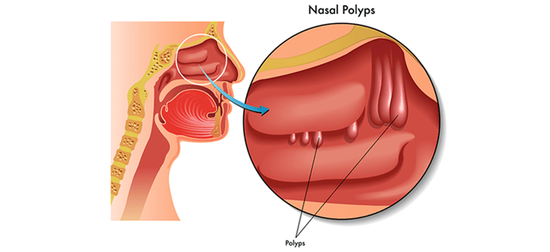 difficulty breathing through your nose can be caused by nasal polyp  obstruction