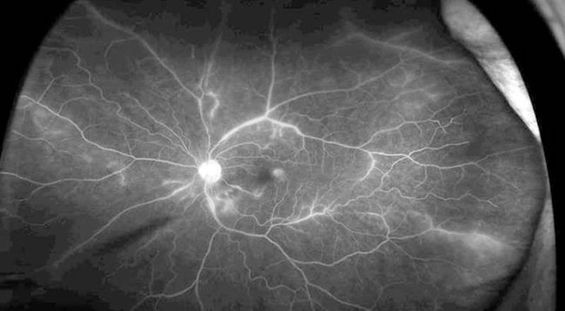 Fluorescein angiography to evaluate retinal vasculitis