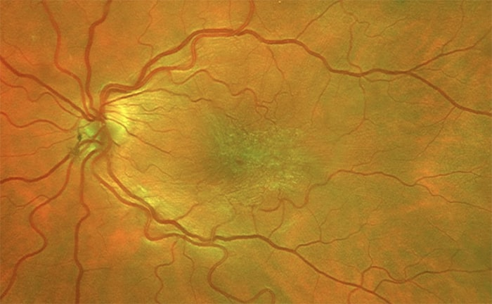 epiretinal membrane in the macula