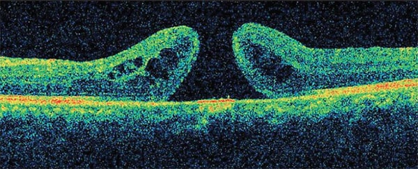 Macular Hole Diasnosis
