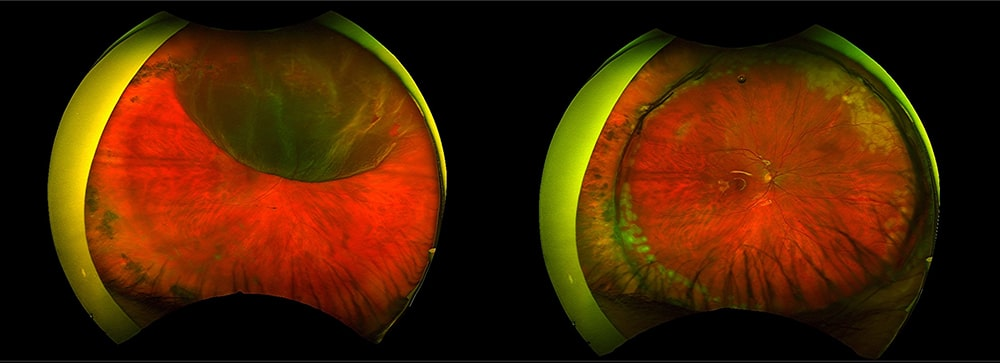 Retinal Detachment Treatment