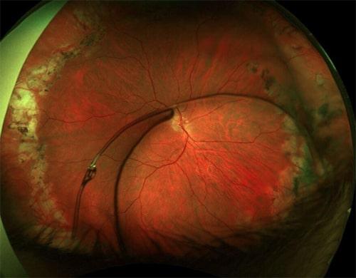 Complex anterior segment causes symptoms
