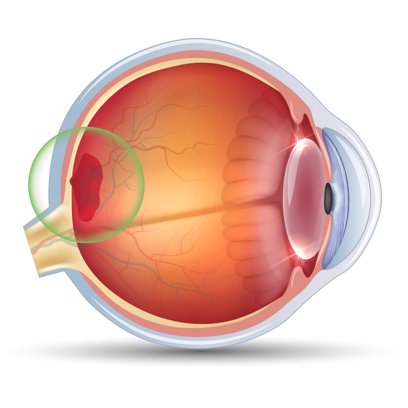 Age-Related Macular Degeneration in the Eye