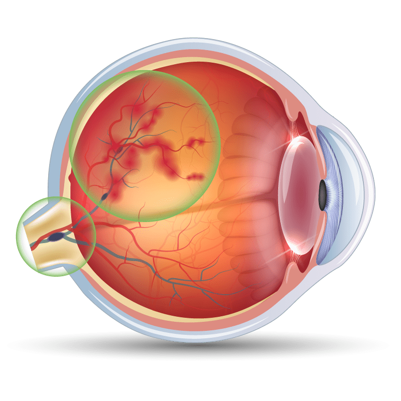 Retinal Vein Occlusion In the eye