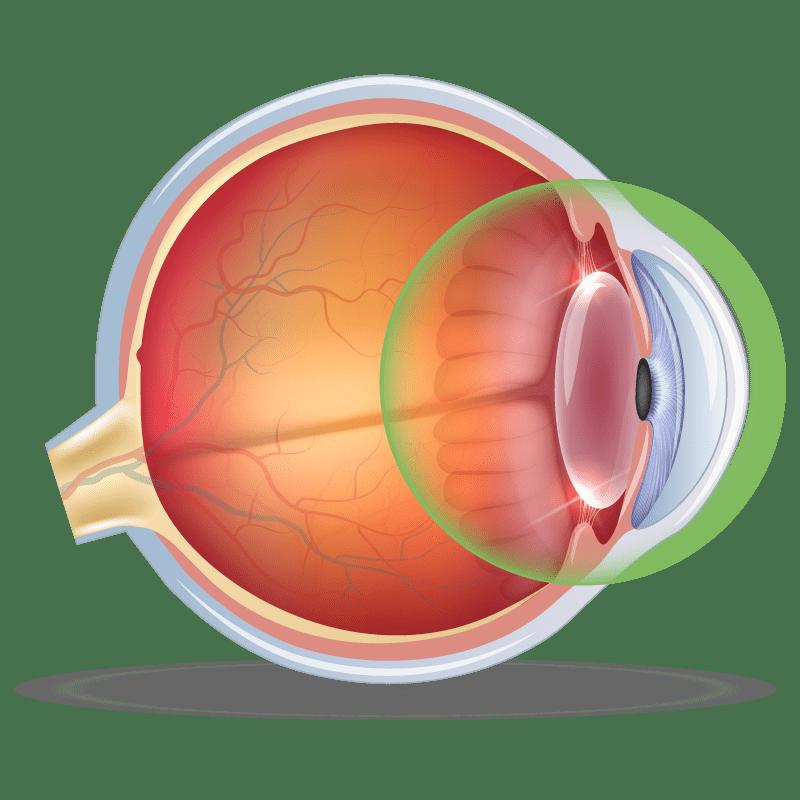 Complex Anterior Segment Disease in the eye