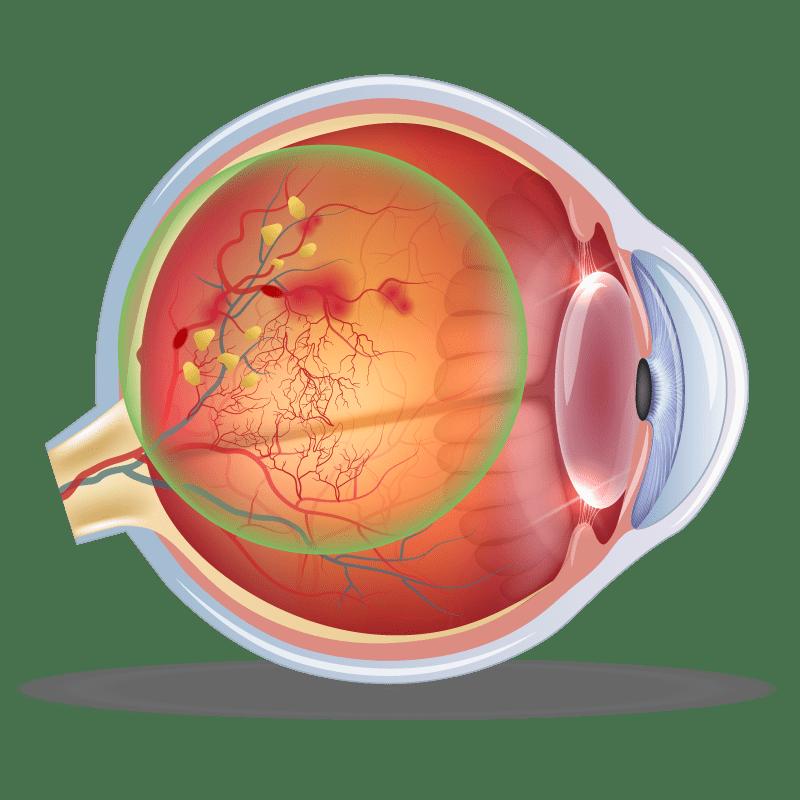 Diabetic Retinopathy in the eye