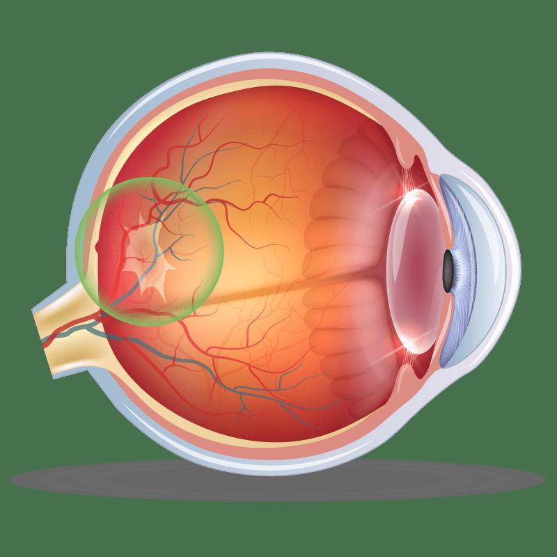 Epiretinal Membrane in the eye