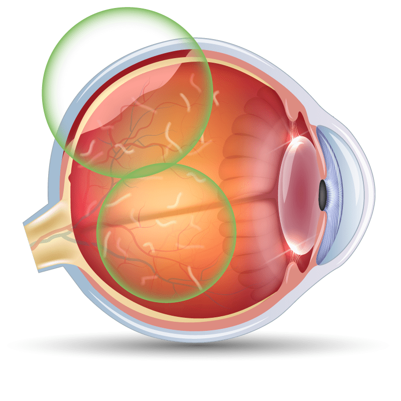 Flashers and Floaters in the eye