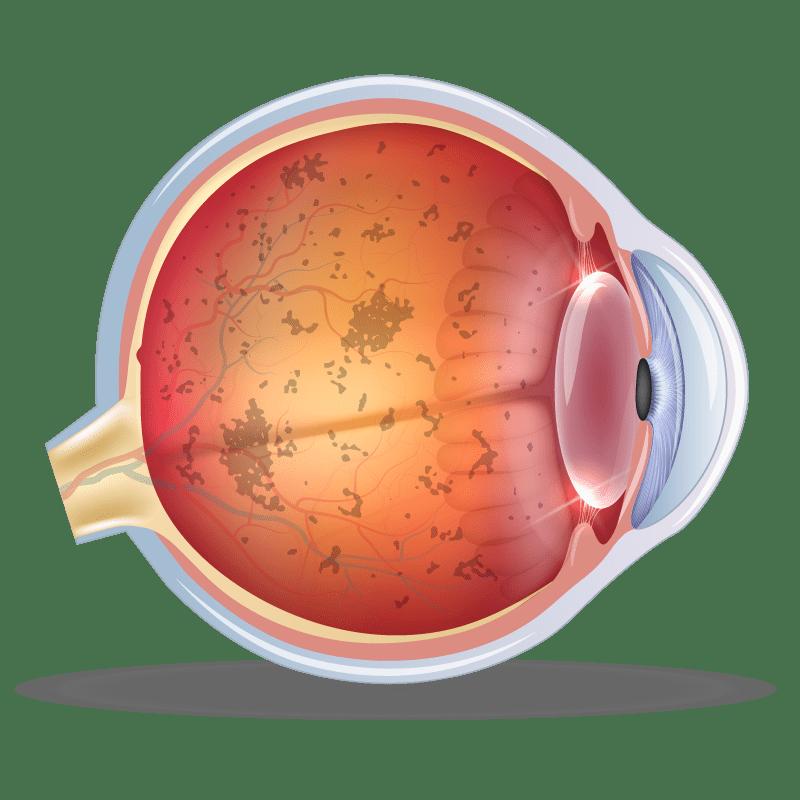 Inherited Retinal Disease in the eye