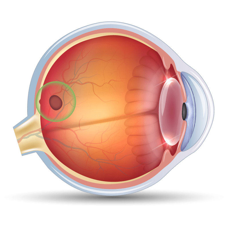 Macular Hole in the eye