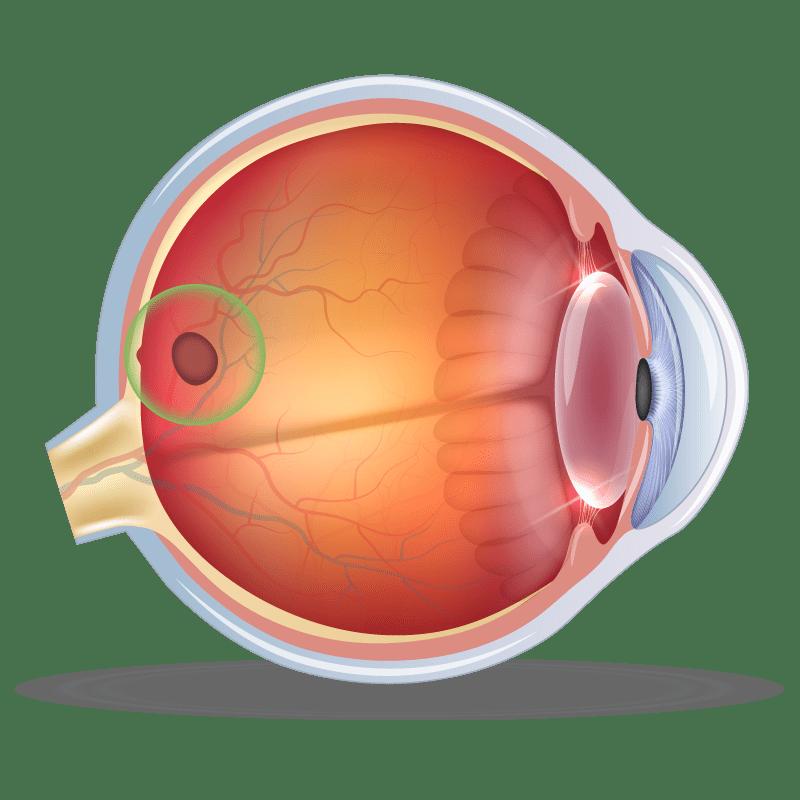 Macular Hole in the eye