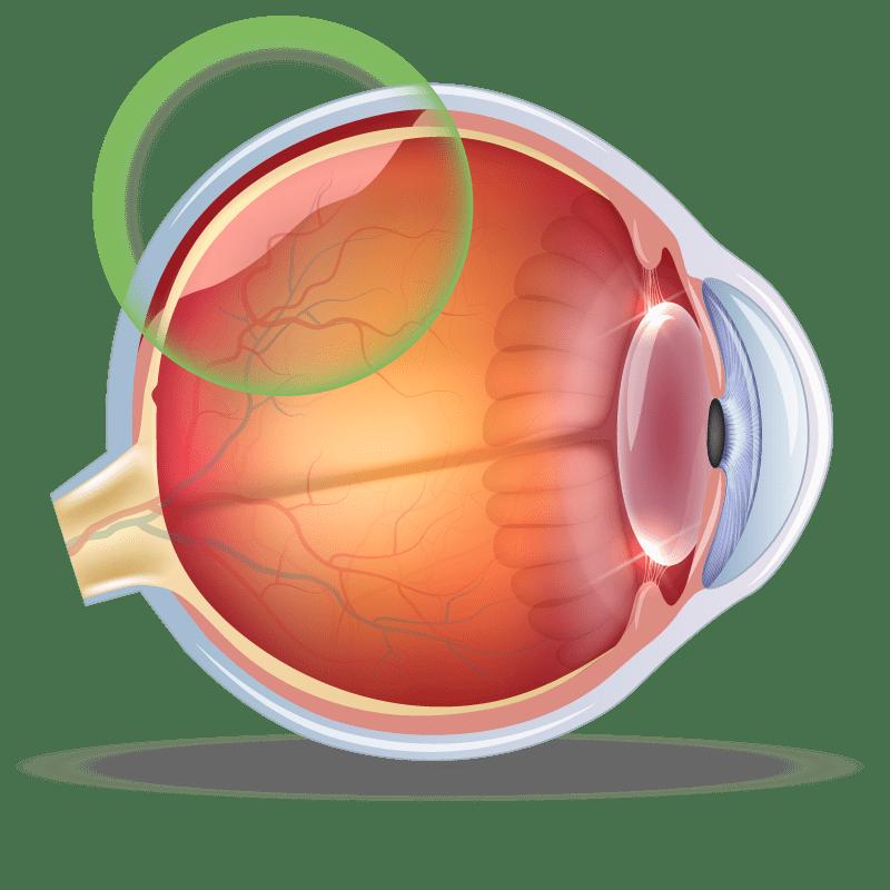 Vitreous Detachment in the eye