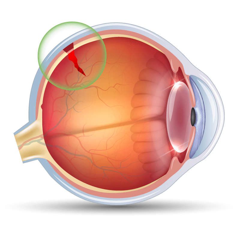 Retinal Tear and Retinal Detachment in the eye