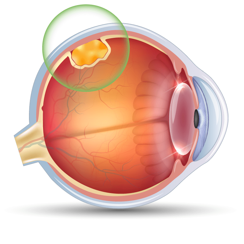Occular Tumors in the eye