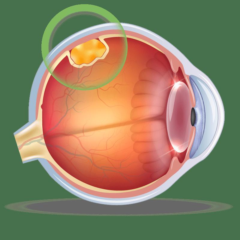 Occular Tumors in the eye