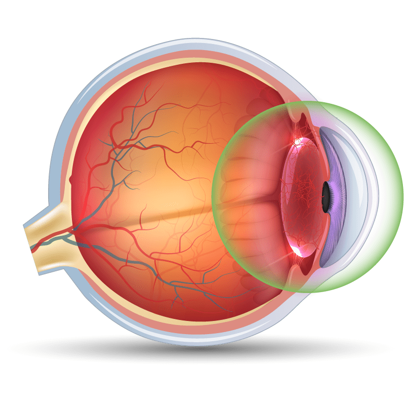 Uveitis in the eye