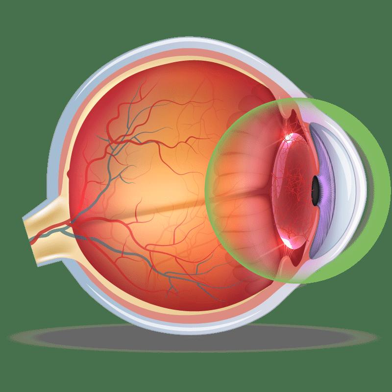 Uveitis in the eye