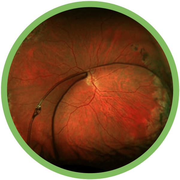 Complex Anterior Segment Disease