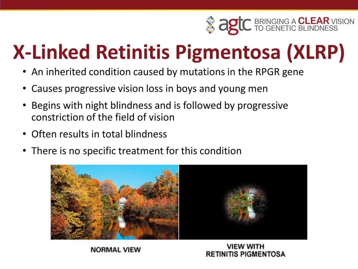 Text about X-linked Retinitis Pigmentosa (XLRP)