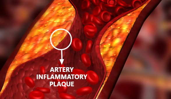 dr sims imt artery inflammatory plaque