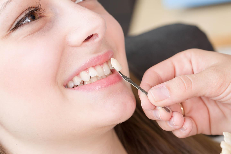 veneer being help up to teeth