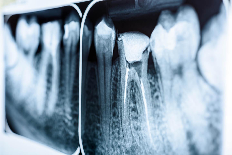 x ray image of teeth