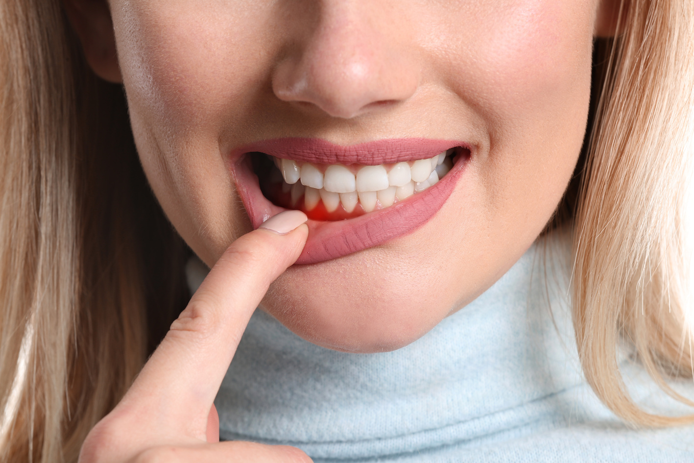 woman pointing at gums
