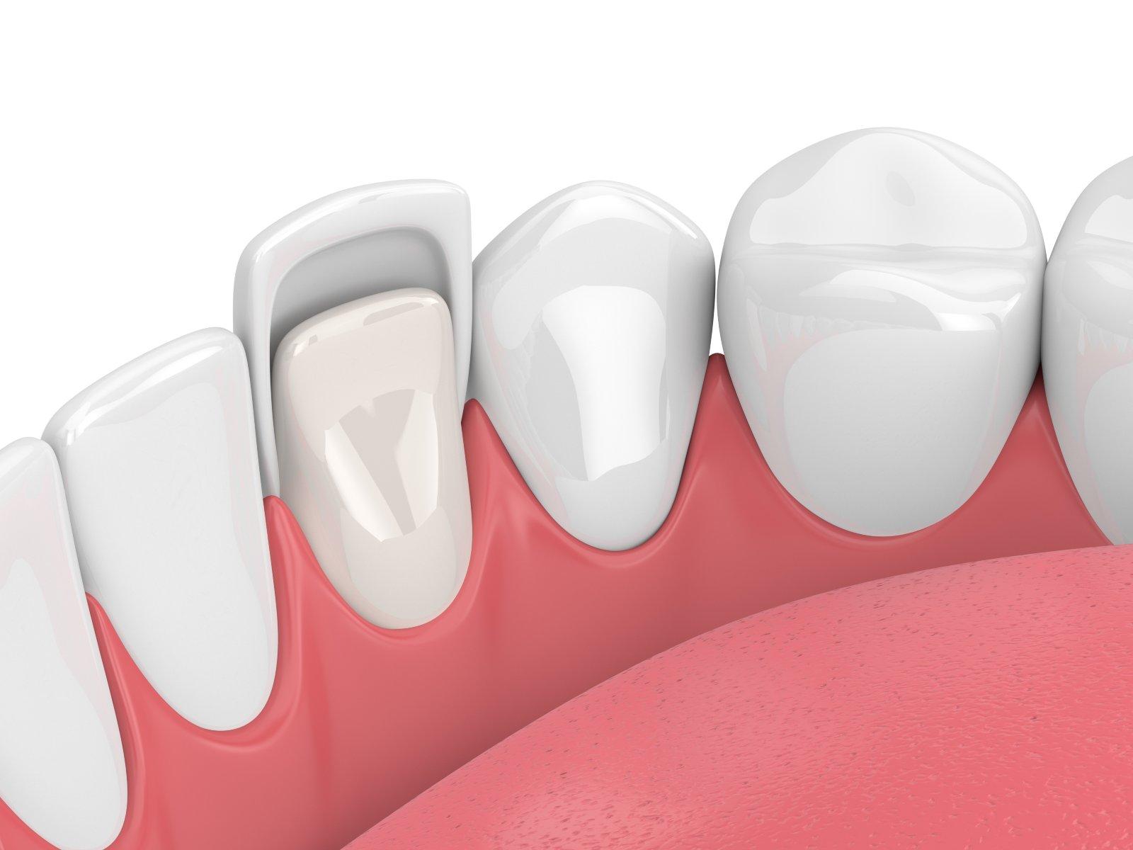 dental bonding graphic
