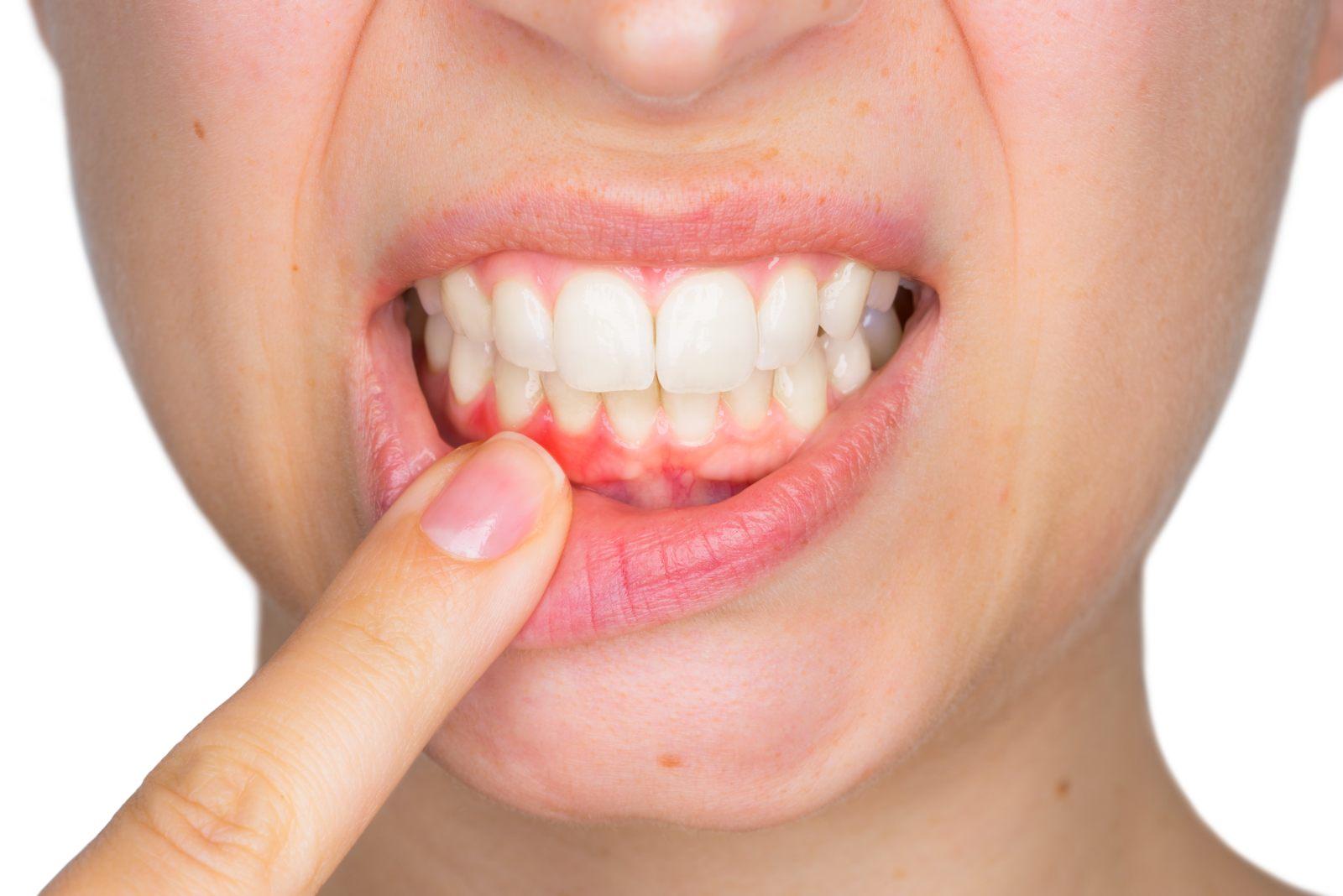 close up of periodontal disease