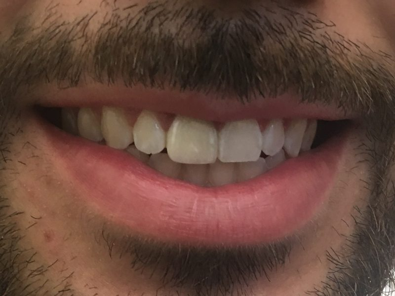 after single tooth dental implant