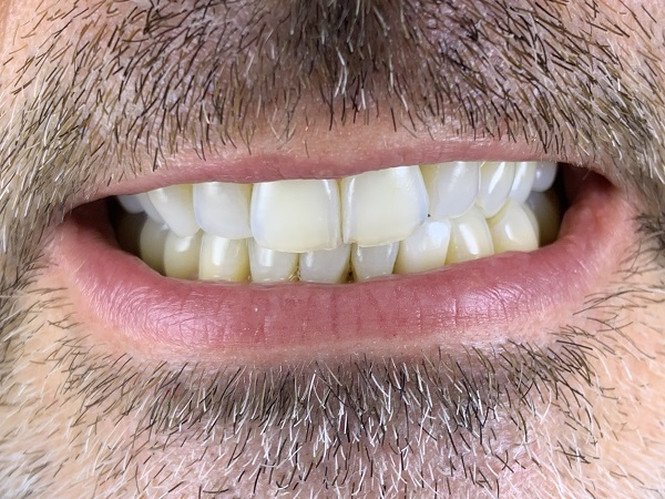 after cosmetic porcelain crowns