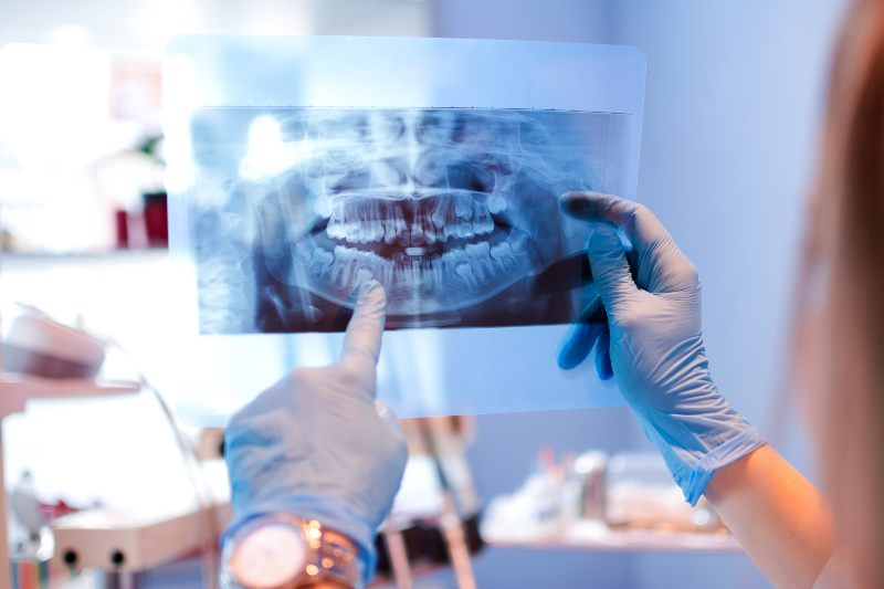 dentist looking at a mouth xray