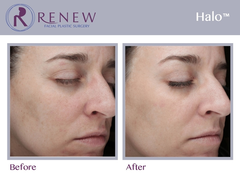 Halo™ Hybrid Treatments