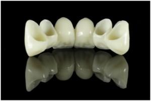 dental bridges in tempe az