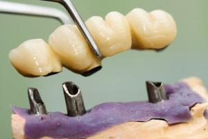dental bridge in tempe
