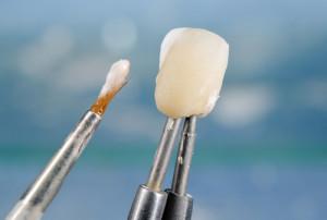 dental bonding in tempe