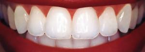 dental bonding tempe az