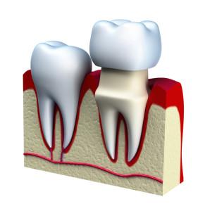 dental crowns in tempe az