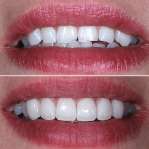porcelain-veneers2