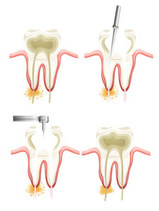 root canal therapy tempe az