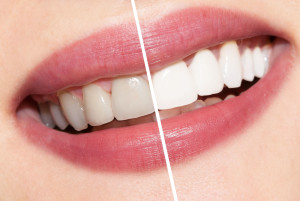 teeth whitening tempe az