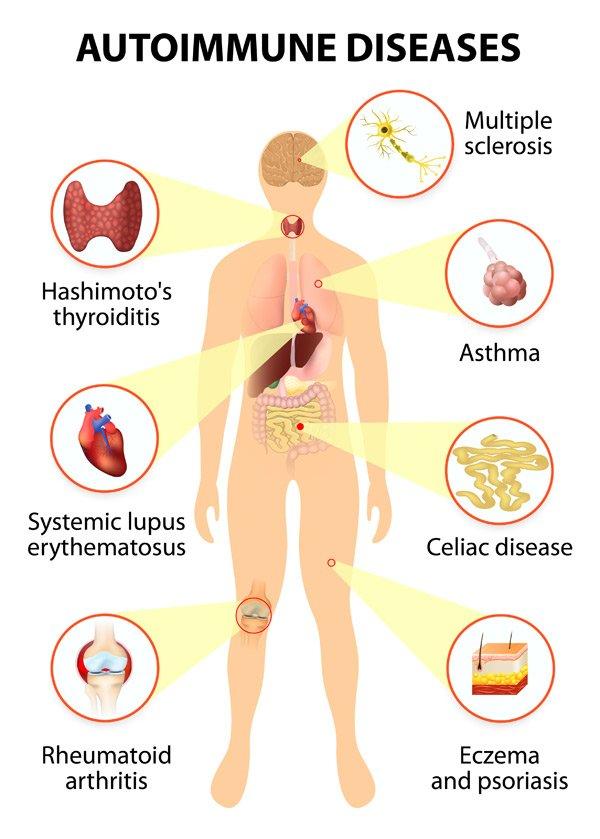 Treatment for Autoimmune Disorder